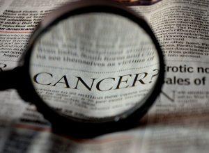 Pankreas Kanseri Nasıl Ortaya Çıkar?